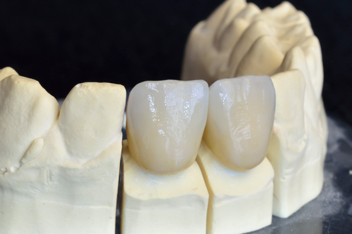 Woburn dental crowns