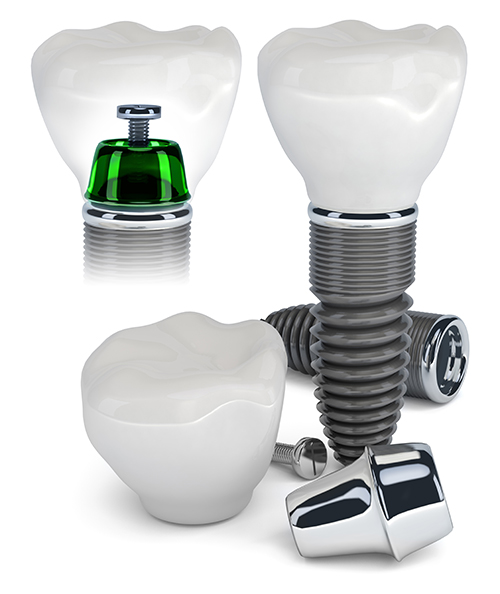 Woburn dental implants