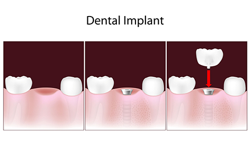 dental implants in Woburn